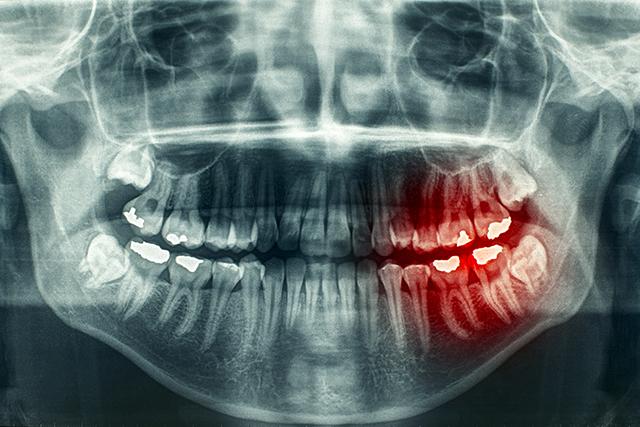 blue teeth disease