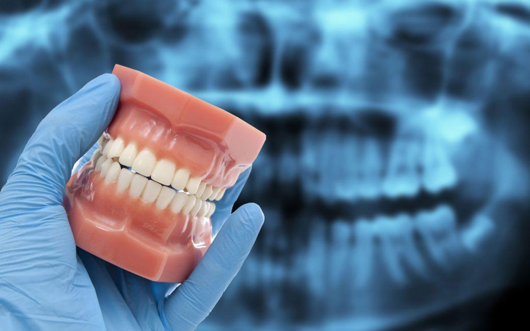 Dental Occlusion Treatment