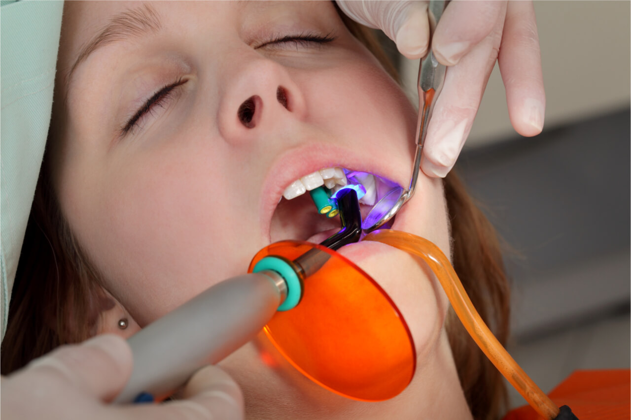 laser treatment for gingivitis