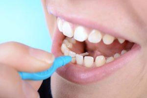 How do you floss a dental bridge